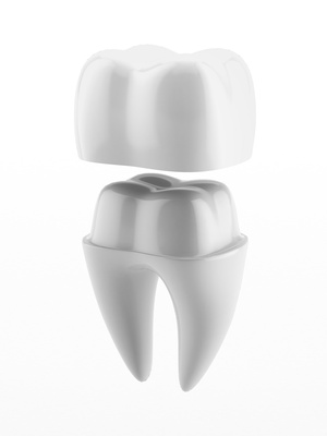 Dental crown and tooth isolated on a white background © ekostsov - Fotolia.com